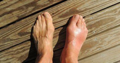 bolečine v nogah