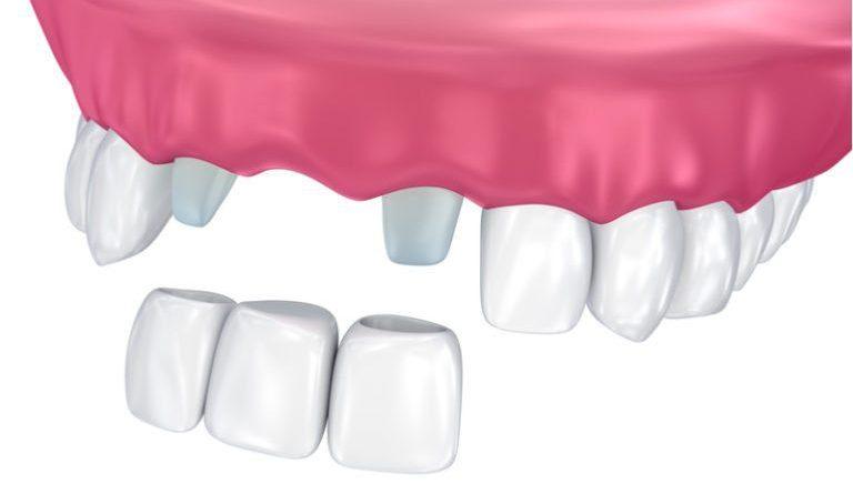 zobni implantati cenik